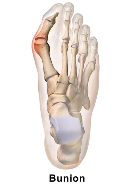 Tips For Running With Bunions