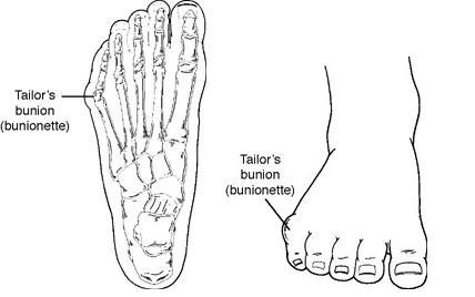 Tailors Bunion