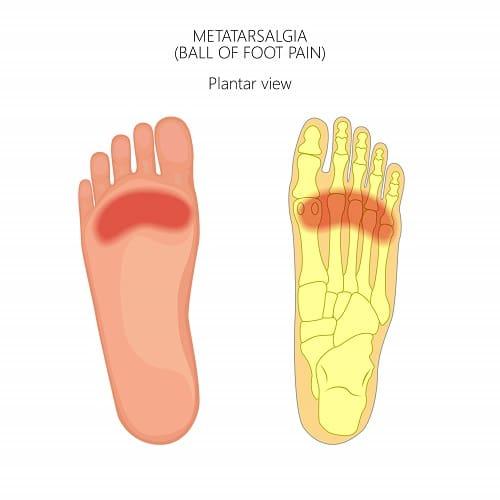 Metarsalgia